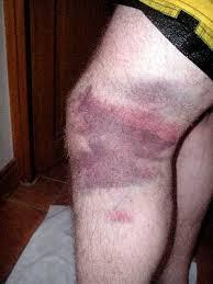 bruised tissue 1